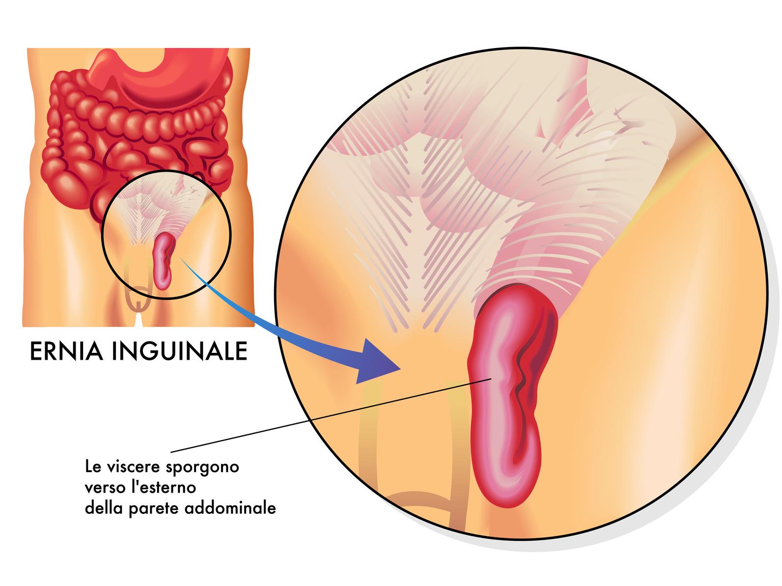ernia-inguinale-2b
