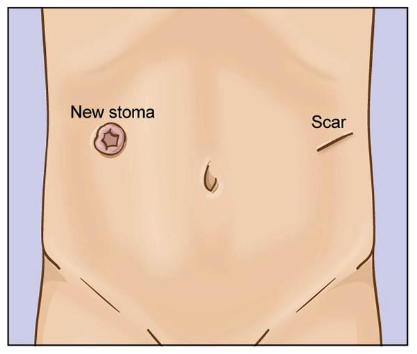 ernia-parastomale2