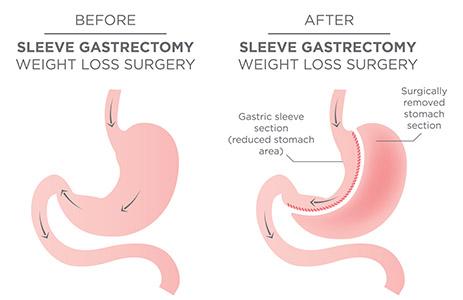 sleeve-gastrectomy
